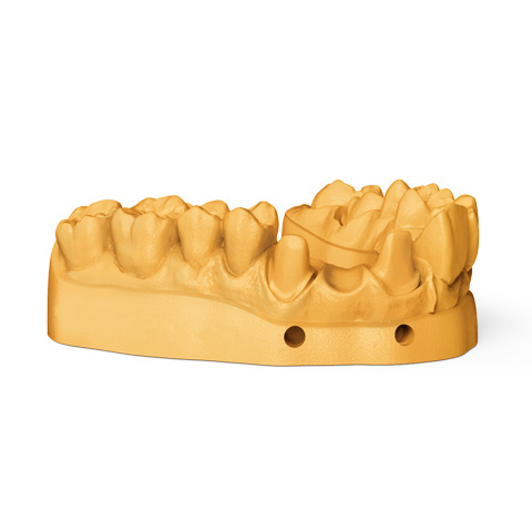 NextDent 3DSystems Model 1.0 | NextDent and 3D Systems - Leading Dental Materials for 3D Printing
