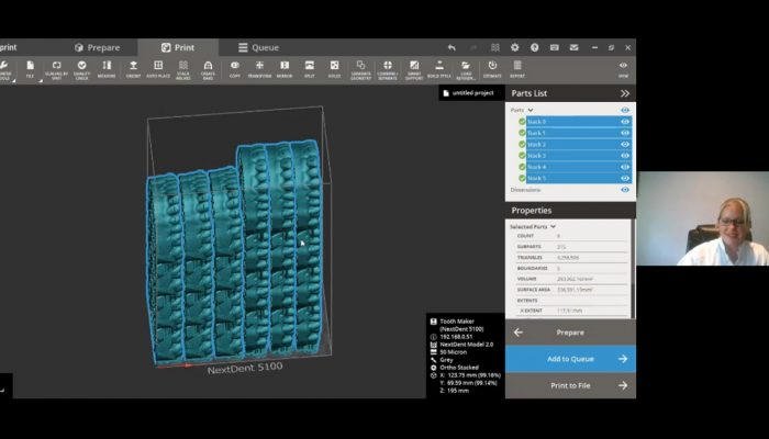 3D Sprint Software V2.13 New features and workflows for your NextDent 5100